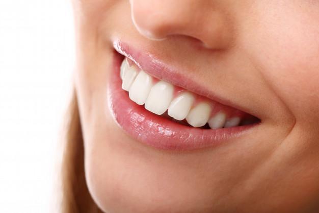 Diseño de sonrisa con carillas dentales