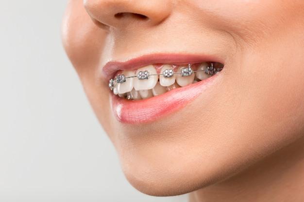 Tipos de ortodoncia más comunes