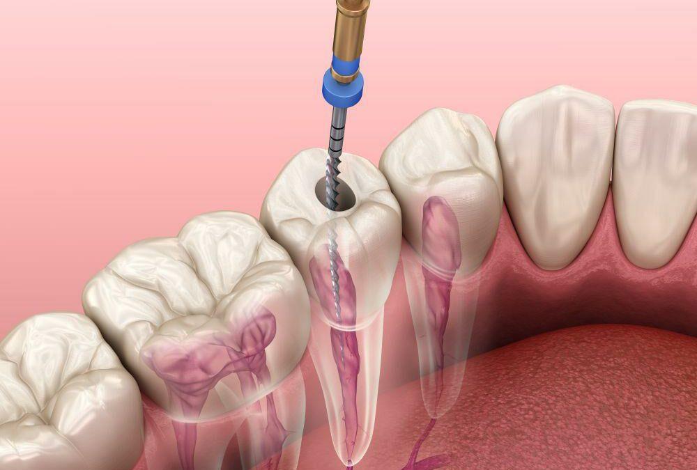 La endodoncia ¿por qué se realiza y en qué consiste?