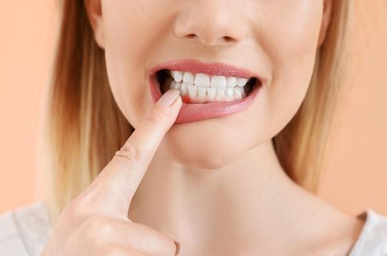 Tipos de periodontitis y sus síntomas